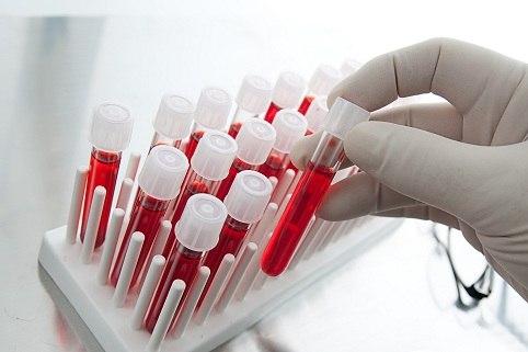 Які аналізи та тести можна зробити безоплатно у свого лікаря?