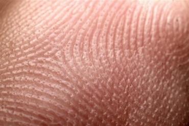 Рівнянам пропонують безкоштовно обстежити шкіру на предмет пігментних новоутворень