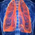 На Рівненщині зросла захворюваність на активні форми туберкульозу
