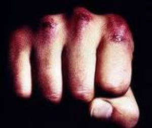У Рівненському районі поліцейські затримали трьох зловмисників за грабіж та тяжкі тілесні ушкодження