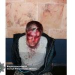 Поліцейські затримали у Рівному чоловіка, який ледь не вбив дружину