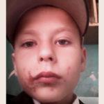 На Рівненщині з реабілітаційного центру втекли троє малолітніх хлопчаків