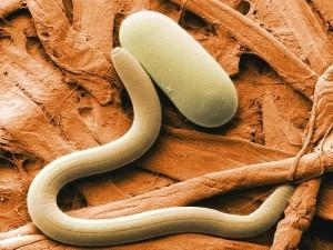 У жінки з-під шкіри видалили гельмінта довжиною 5,5 см.