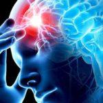 Як розпізнати інсульт?