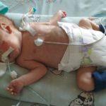 На Рівненщині немовля потребує термінової допомоги небайдужих людей