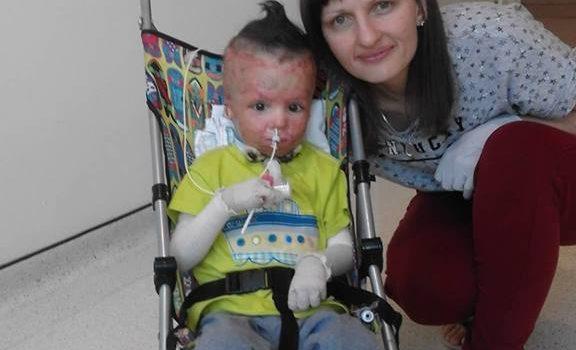 Хлопчик, який горів живцем, повернувся додому або як людська небайдужість врятувала дитину