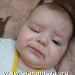 На Рівненщині дівчинці, якій необхідна складна операція, потрібна допомога