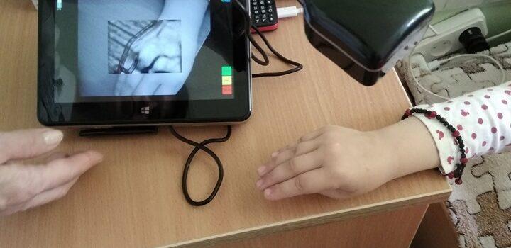 У Рівненську обласну дитячу лікарню доставили веносканер з США
